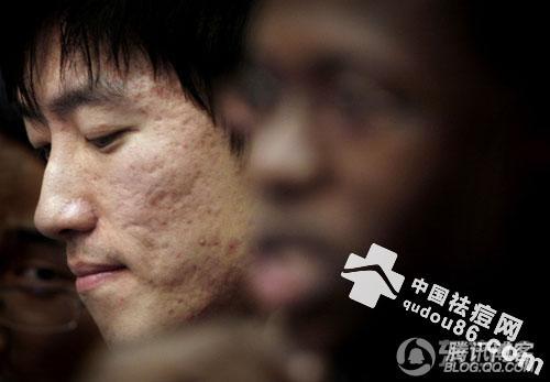 脸上长痘痘那点事,刘翔真是火吗?