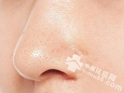 清除黑头粉刺只要一支牙刷!不花半毛钱告别皮肤问题!