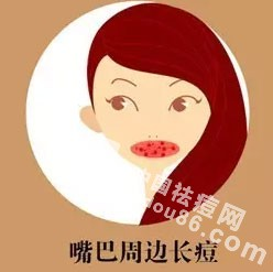 嘴周<a href=http://www.qudou86.com/tag/changdou/ target=_blank >长<a href=http://www.qudou86.com/tag/dou_3982/ target=_blank >痘</a></a>