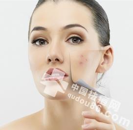 快速祛痘最有效的方法 皮肤越来越好