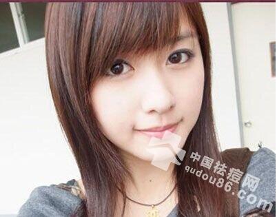 13个长<a href=http://www.qudou86.com/tag/qingchundou/ target=_blank ><a href=http://www.qudou86.com/tag/qingchun/ target=_blank >青春</a><a href=http://www.qudou86.com/tag/dou_3982/ target=_blank >痘</a></a>的<a href=http://www.qudou86.com/tag/yuanyin/ target=_blank >原因</a>