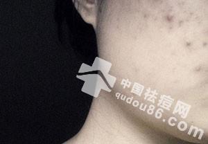 黑色<a href=http://www.qudou86.com/tag/douyin_3705/ target=_blank ><a href=http://www.qudou86.com/tag/dou_3982/ target=_blank >痘</a>印</a>