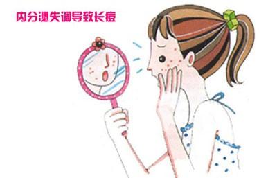 人中<a href=http://www.qudou86.com/tag/changdou/ target=_blank >长<a href=http://www.qudou86.com/tag/dou_3982/ target=_blank >痘</a></a>的<a href=http://www.qudou86.com/tag/yuanyin/ target=_blank >原因</a>一、内分泌旺盛