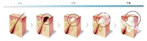 胸前<a href=http://www.qudou86.com/tag/changdou/ target=_blank >长<a href=http://www.qudou86.com/tag/dou_3982/ target=_blank >痘</a></a><a href=http://www.qudou86.com/tag/dou_3982/ target=_blank >痘</a>是什么<a href=http://www.qudou86.com/tag/yuanyin/ target=_blank >原因</a>