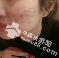 左脸长痘痘是什么原因