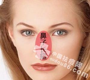 鼻子上长痘痘是什么原因 5大原因揭密