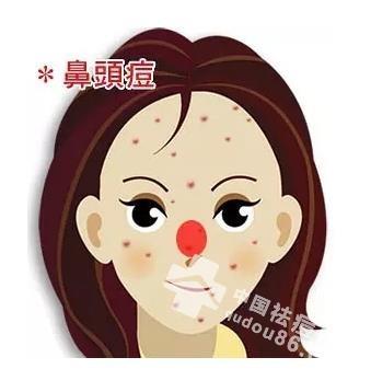 做好<a href=http://www.qudou86.com/tag/bizi/ target=_blank >鼻子</a>处清洁<a href=http://www.qudou86.com/tag/bushui/ target=_blank >补<a href=http://www.qudou86.com/tag/shui/ target=_blank >水</a></a>工作