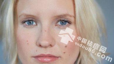 每天三分钟,祛痘印美白又护肤,快来学学看!
