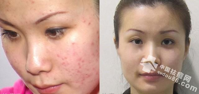 千万不要盲目护肤! 要找准自己的肤质类型,针对性的护肤