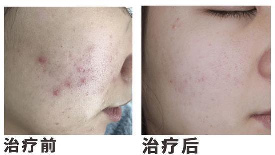 烂脸12年 我是怎么治好一脸痘痘的