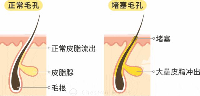 甘蔗汁和<a href=http://www.qudou86.com/tag/jinyinhua/ target=_blank >金银花</a><a href=http://www.qudou86.com/tag/chu/ target=_blank >祛除</a><a href=http://www.qudou86.com/tag/qingchundou/ target=_blank ><a href=http://www.qudou86.com/tag/qingchun/ target=_blank >青春</a><a href=http://www.qudou86.com/tag/dou_3982/ target=_blank >痘</a></a>?